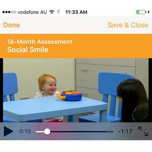 Smart ASD Detection Tool