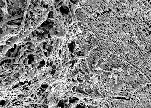 bacterial biofilm